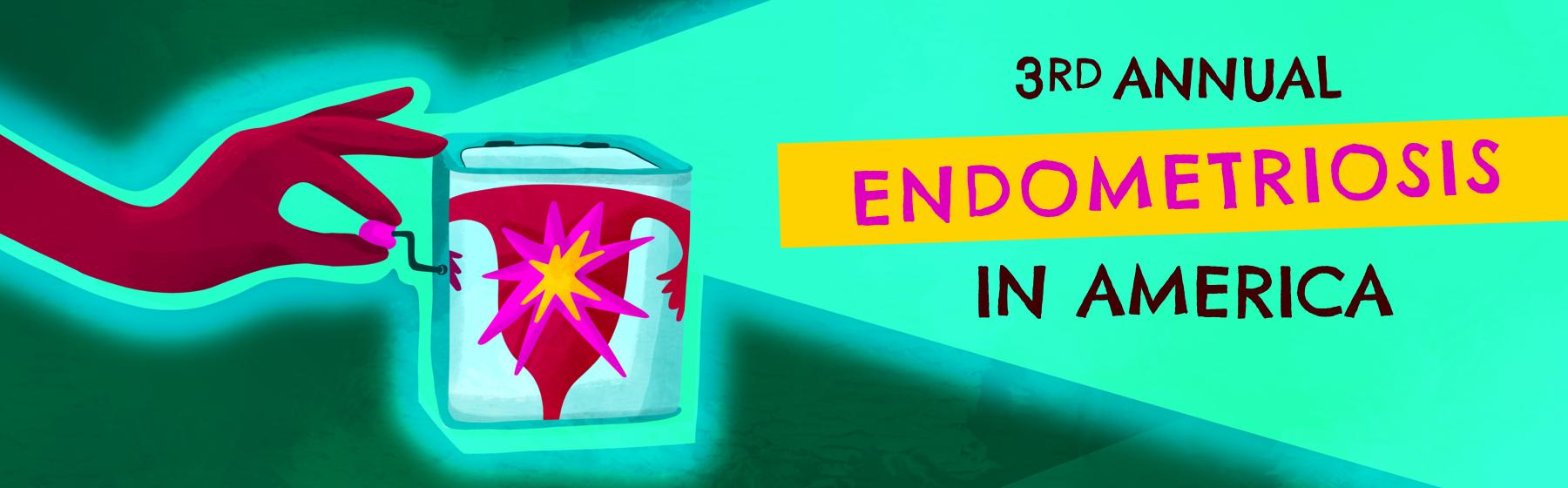 Survey Provides Deep Dive into Deep Infiltrative Endometriosis